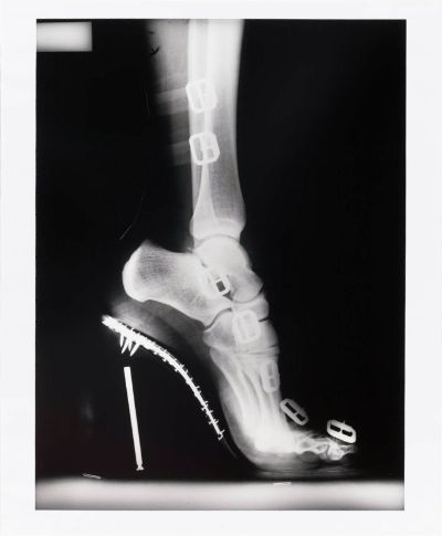 Helmut Newton x-ray foot